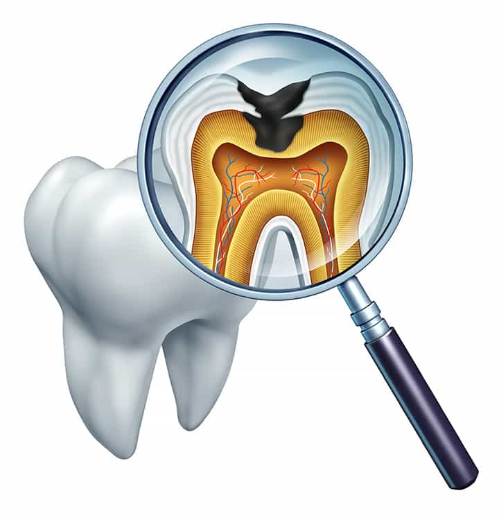 Root Canal Treatment in Cary, NC