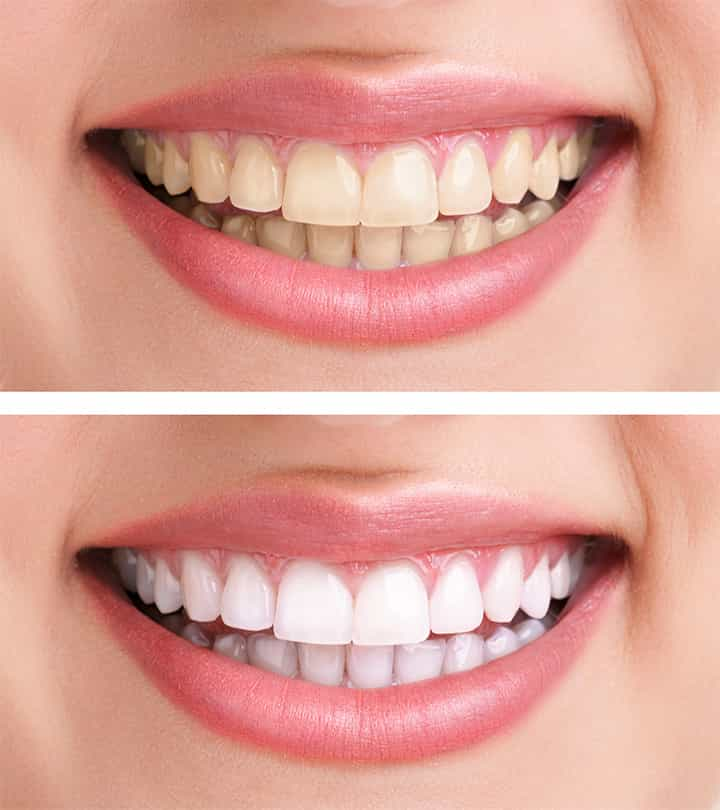 Teeth Whitening Service in Cary, NC